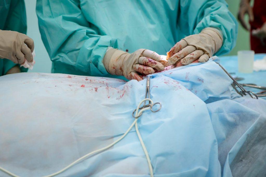 小学生以来の手術